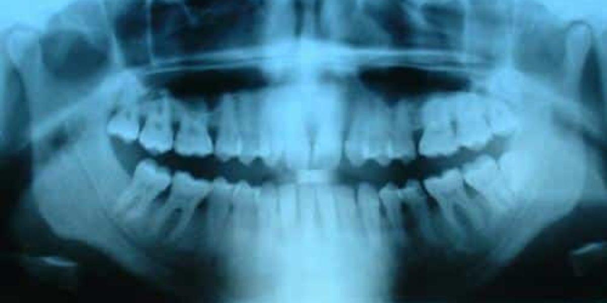 poussée dentaire chez l'enfant