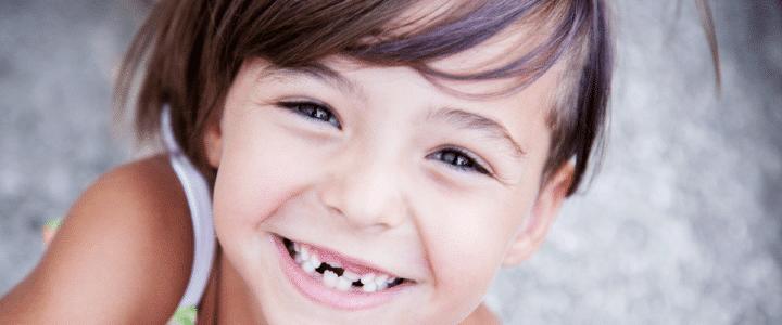 petite fille avec des dents tombées